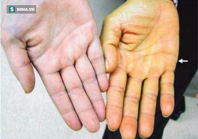 Vàng da là một trong những dấu hiệu cảnh báo gan có vấn đề