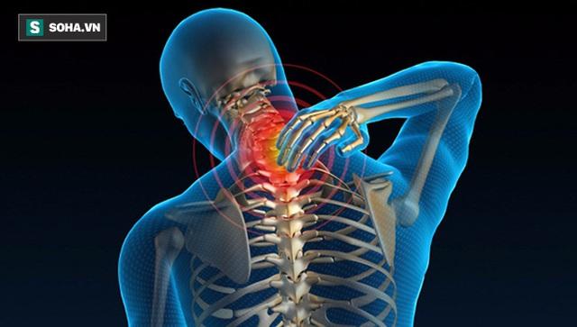 Cột sống cổ bị tổn thương là nguyên nhân gây nên nhiều bệnh lý nguy hiểm và gây ảnh hưởng nghiêm trọng tới sinh hoạt của người bệnh. (Ảnh minh họa).