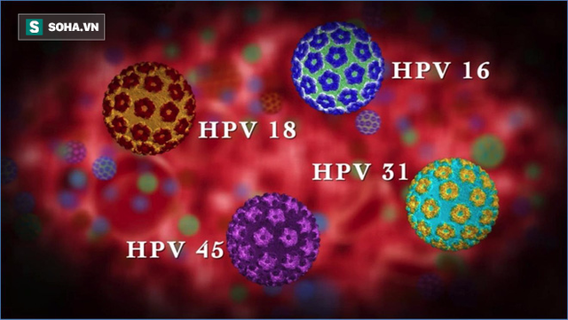 Mỗi năm có khoảng 11.600 người tại Mỹ được chẩn đoán mắc phải ung thư khoang miệng do HPV gây nên.
