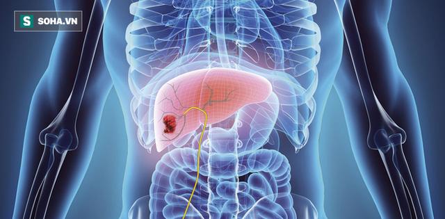 Có 7 triệu chứng này kéo dài 2 tuần: Hãy đi khám ung thư gan để giữ cơ hội sống cao nhất - Ảnh 2.