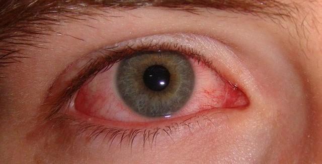 Chủ quan bỏ qua những dấu hiệu bất thường ở mắt dưới đây khiến bạn gặp phải hàng loạt vấn đề sức khỏe nghiêm trọng - Ảnh 2.
