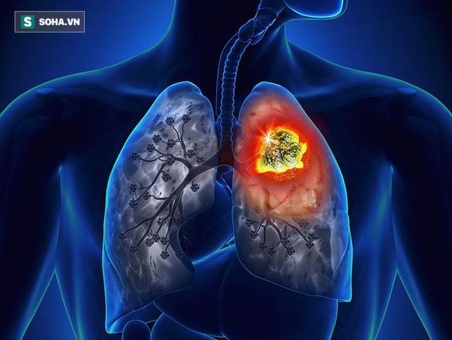 Hơn 20.000 người Việt tử vong do ung thư phổi mỗi năm: Phát hiện bệnh sớm để sống lâu hơn - Ảnh 1.
