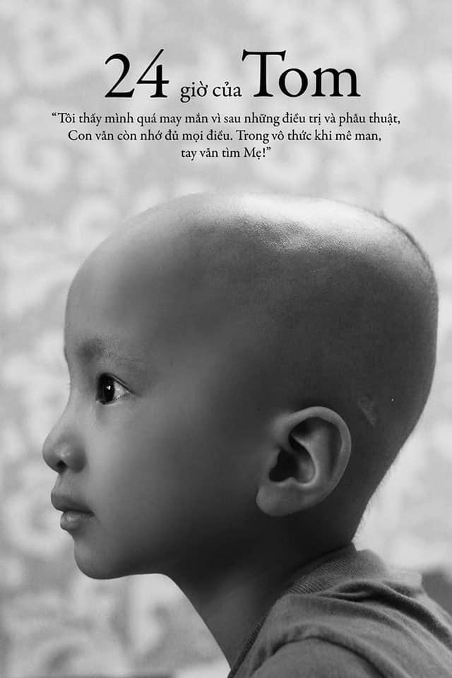 Lời tâm sự xúc động từ mẹ em bé ung thư não trong bộ ảnh 24h của Tom: Mình không được than vãn, vì thiệt thòi là con... - Ảnh 1.