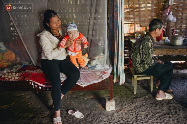 Chuyện về Cún: Em bé Down ở Yên Bái mang nhiều bất hạnh và sự chung tay của cả cộng đồng - Ảnh 5.