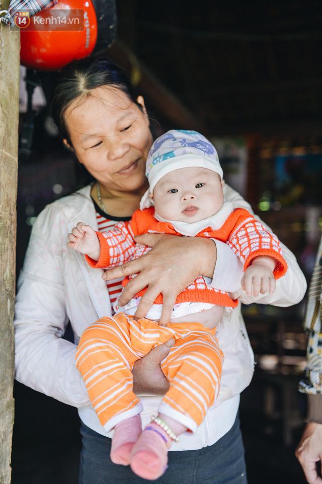Chuyện về Cún: Em bé Down ở Yên Bái mang nhiều bất hạnh và sự chung tay của cả cộng đồng - Ảnh 6.
