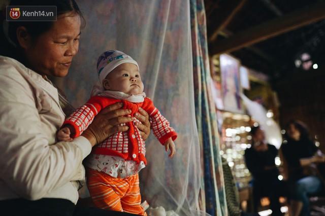Chuyện về Cún: Em bé Down ở Yên Bái mang nhiều bất hạnh và sự chung tay của cả cộng đồng - Ảnh 7.