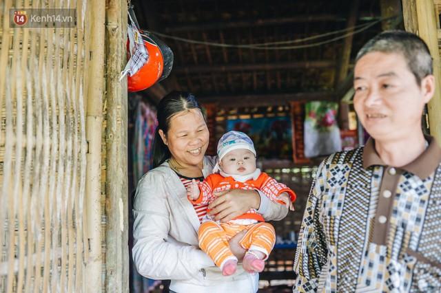 Chuyện về Cún: Em bé Down ở Yên Bái mang nhiều bất hạnh và sự chung tay của cả cộng đồng - Ảnh 10.