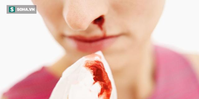 Ngả phía trước hay ngửa đầu ra sau khi chảy máu cam: Không biết khiến bạn có thể xử lý sai - Ảnh 2.