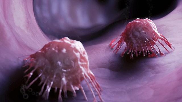 Loại lương dược rẻ tiền phòng ung thư, mỡ máu, táo bón: Tiếc rằng bạn chưa biết tận dụng - Ảnh 3.