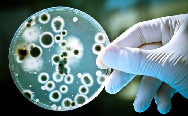 Xuất hiện bệnh nhân kháng tất cả các loại kháng sinh, bác sĩ cảnh báo cuộc chiến của siêu vi khuẩn với loài người - Ảnh 1.