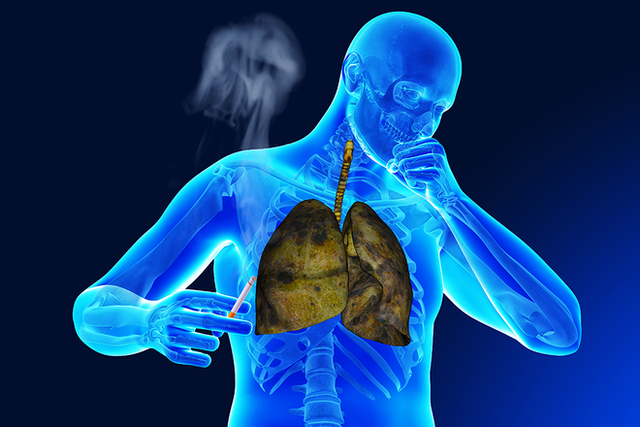 Khi bị ho, sốt và 3 dấu hiệu đi kèm cùng lúc, cẩn thận ung thư phổi đã vào giai đoạn nặng - Ảnh 3.