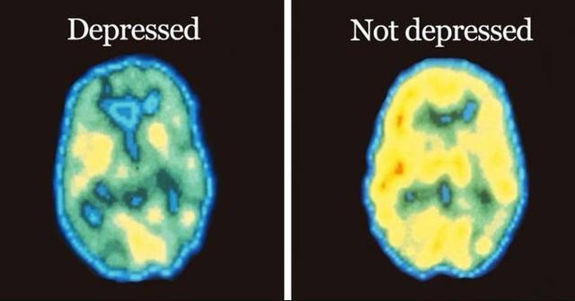 Hàng triệu người đang mắc trầm cảm và rất có thể đây chính là nguyên nhân - Ảnh 2.