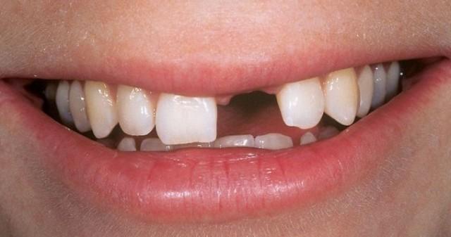 Biểu hiện lạ của răng miệng có thể cảnh báo những căn bệnh tiềm ẩn bên trong - Ảnh 4.