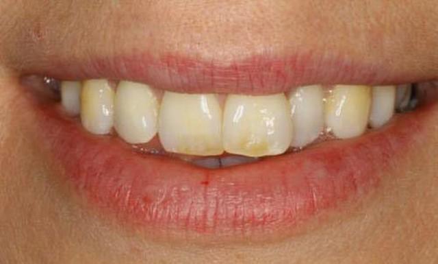 Biểu hiện lạ của răng miệng có thể cảnh báo những căn bệnh tiềm ẩn bên trong - Ảnh 5.