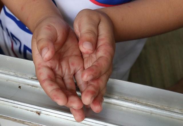 Cảnh báo tay chân miệng, dấu hiệu cha mẹ đừng bỏ qua - Ảnh 2.