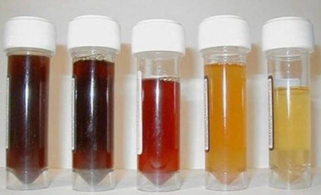 10 bí mật về nước tiểu liên quan đến thận, sức khỏe: Ai cũng nên biết rõ để phòng bệnh tốt - Ảnh 3.
