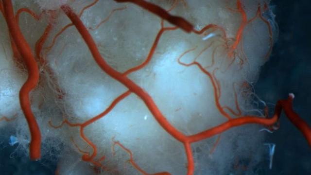 Lần đầu tiên nuôi thành công mạch máu người: cuộc cách mạng lớn với hàng triệu người đã xuất hiện - Ảnh 1.