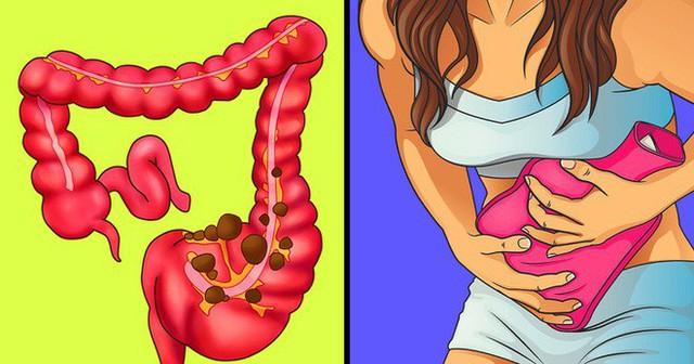 7 cách hiệu quả để giảm đau dạ dày và táo bón mà không cần đến thuốc giảm đau - Ảnh 1.