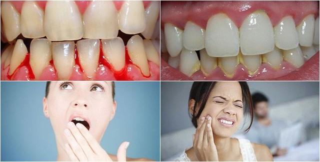 Đang đánh răng thì đột nhiên 1 chiếc răng rơi xuống, cô gái 28 tuổi phải nhổ bỏ hàm trên vì bệnh nguy hiểm - Ảnh 2.