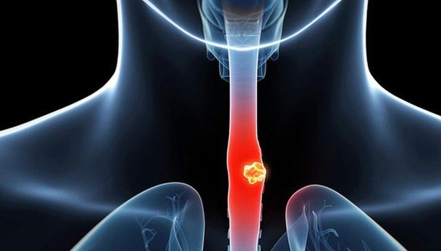 Có 4 dấu hiệu bất thường này sau khi uống nước thì chứng tỏ bạn đang bị bệnh nặng - Ảnh 2.
