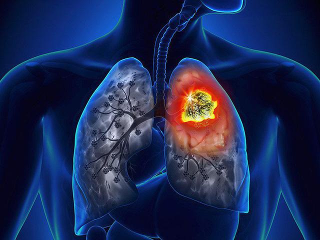 Cảnh báo: Nếu xuất hiện dấu hiệu này ở lòng bàn tay, rất có thể đã bị ung thư phổi! - Ảnh 1.