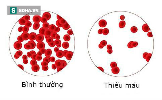 Thiếu máu rất nguy hiểm: TS dinh dưỡng hướng dẫn 5 tuyệt chiêu bổ máu hiệu quả nhất  - Ảnh 2.