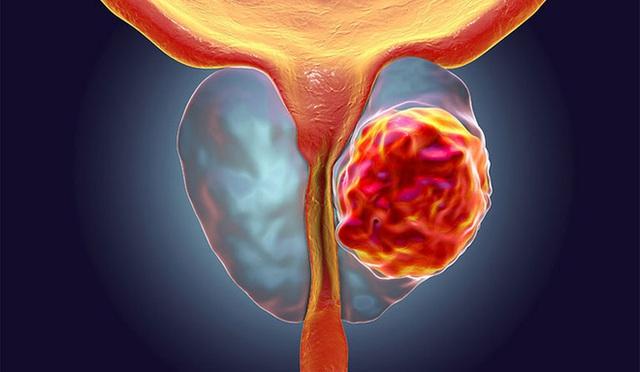 Có 4 dấu hiệu khi đi tiểu cảnh báo nguy cơ cao về mầm mống bệnh ung thư  - Ảnh 3.