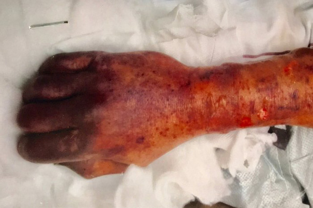 Người đàn ông Đức tử vong sau khi bị chó liếm, các bác sĩ cảnh báo căn bệnh nhiễm trùng hiếm gặp - Ảnh 2.