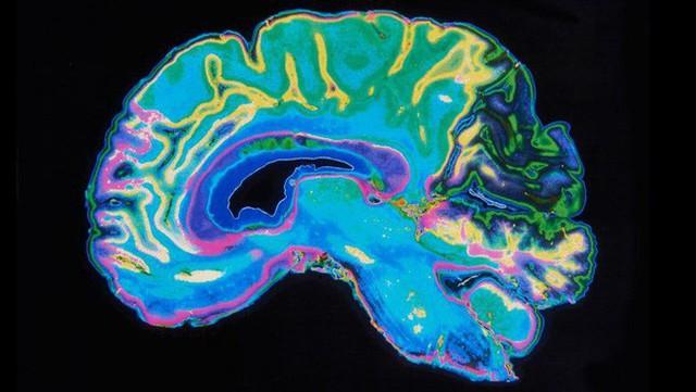 Nghiên cứu: Não bộ phụ nữ trẻ hơn đàn ông bằng tuổi khoảng 6 năm - Ảnh 4.