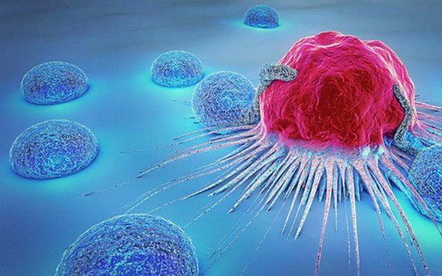 PCT Hội ung thư: Cảnh báo duy nhất một thói quen nhanh dẫn tới ung thư và cửa tử nhất - Ảnh 1.