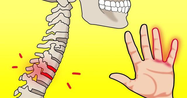 Đừng phớt lờ khi thường xuyên bị tê tay bởi bạn có thể mắc phải 8 căn bệnh nguy hiểm này - Ảnh 4.