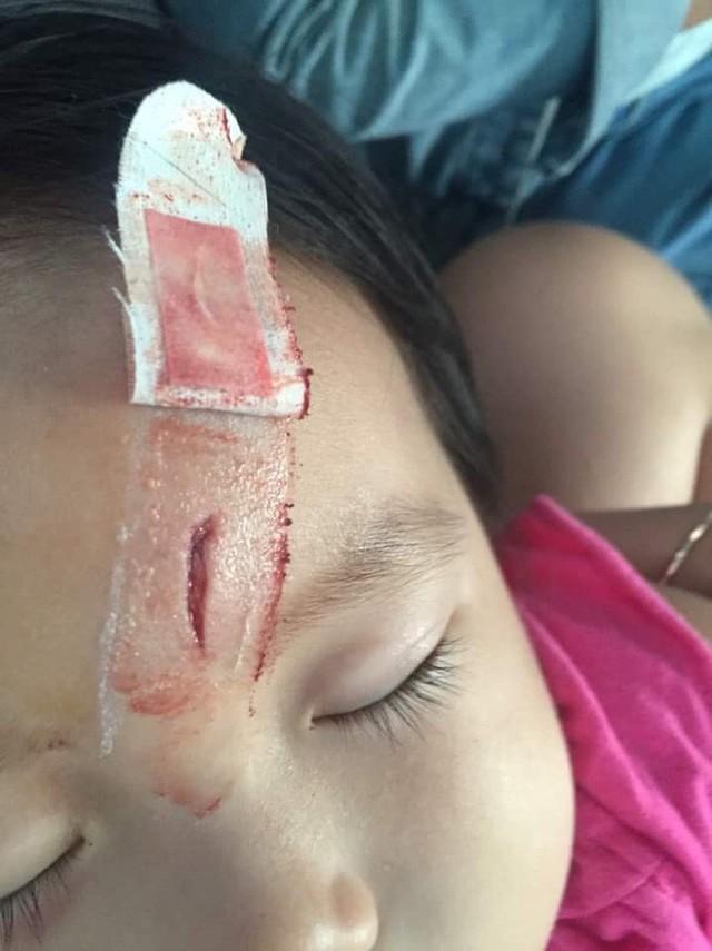 Trung tâm kiểm soát và phòng ngừa dịch bệnh Mỹ lên tiếng: Một cậu bé 6 tuổi suýt chết vì uốn ván do bố mẹ anti-vaccine - Ảnh 2.