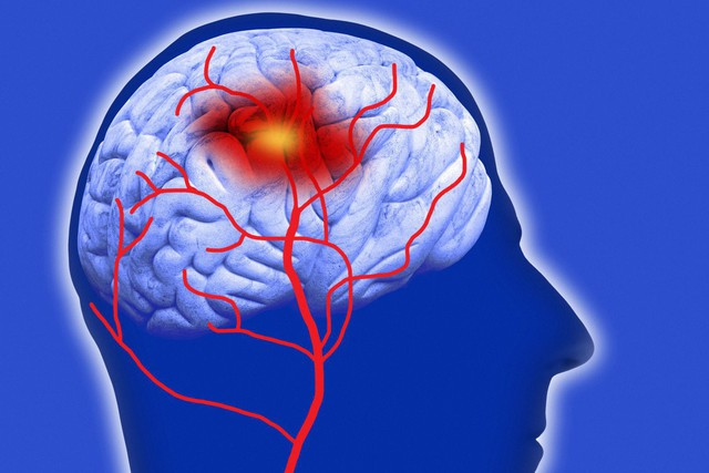 Xuất huyết não xuất hiện cả ở người trẻ, hãy cẩn thận nếu thuộc các trường hợp sau - Ảnh 1.