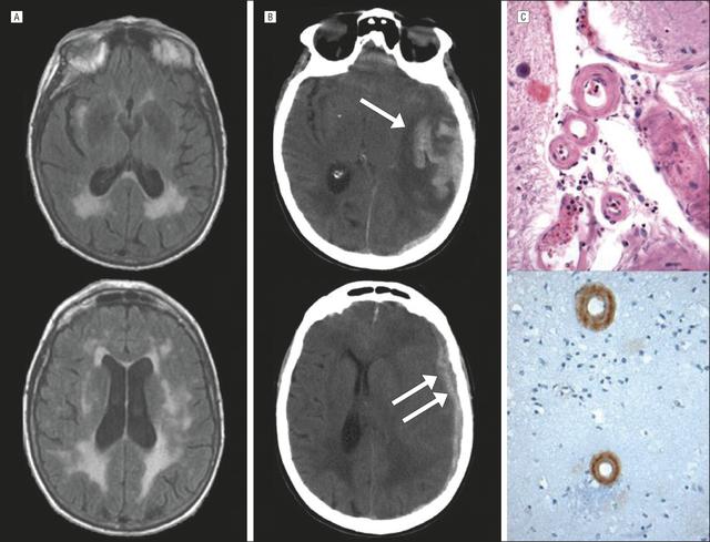 Xuất huyết não xuất hiện cả ở người trẻ, hãy cẩn thận nếu thuộc các trường hợp sau - Ảnh 2.