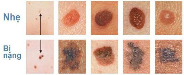 7 triệu chứng không đau có thể là dấu hiệu sớm của ung thư: Khám sớm có thể cứu sống bạn - Ảnh 5.
