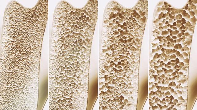 Đây là lý do vì sao các chuyên gia khuyên chúng ta nên bổ sung vitamin D hàng ngày - Ảnh 1.