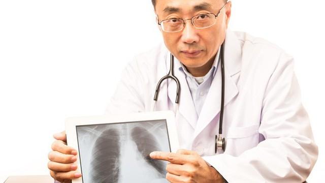 Cả nhà 4 người đều mắc bệnh ung thư phổi: Đây là triệu chứng cảnh báo mọi người cần lưu ý - Ảnh 2.