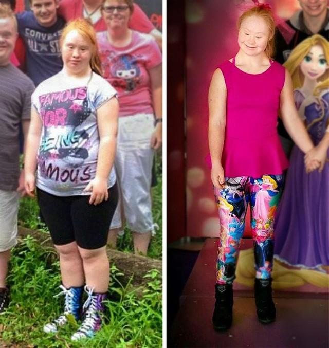 Người mẫu trẻ mắc bệnh Down từng thay đổi chuẩn mực cái đẹp thế giới 4 năm trước giờ đây đã có bước tiến không ngờ, mơ thành thiên thần Victorias Secret - Ảnh 1.