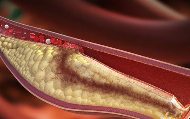 Bệnh mỡ máu cao không trừ một ai: Muốn không có bệnh thì nên chú ý 7 điều quan trọng - Ảnh 2.