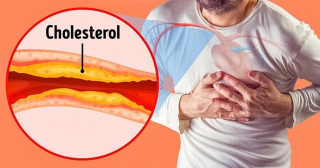 Dấu hiệu nguy hiểm cảnh báo tắc nghẽn động mạch: Nhận biết sớm, nguy cơ bị đột quỵ sẽ giảm - Ảnh 2.