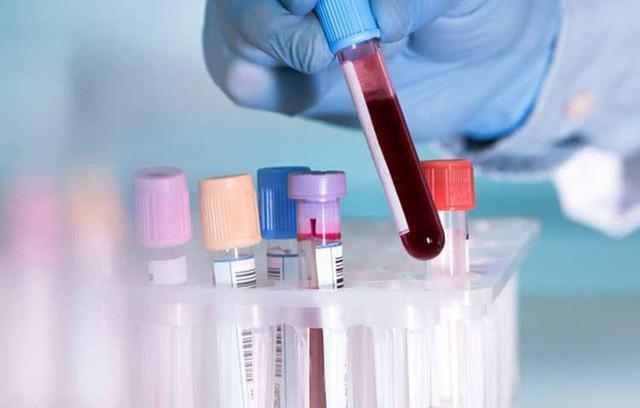 Ai cũng tưởng tầm soát ung thư là giải pháp phát hiện sớm mà không biết 3 tác hại này - Ảnh 4.