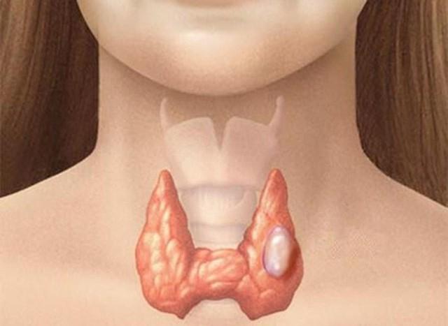 Cần cảnh giác với cục cứng nổi ở cổ: Cách nhận biết dấu hiệu ung thư tuyến giáp - Ảnh 2.