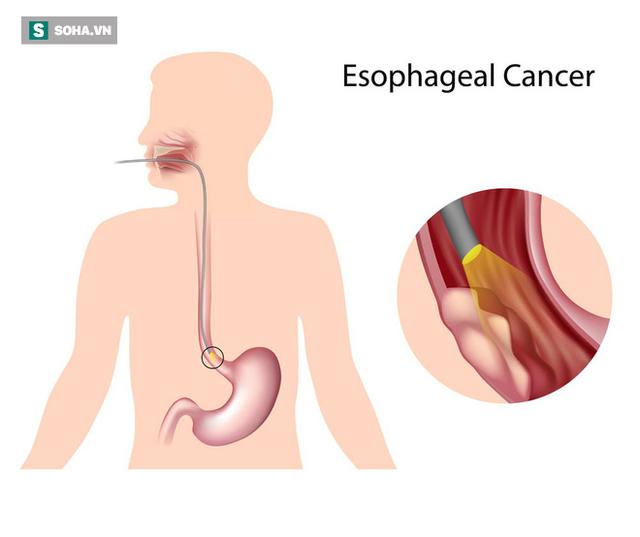4 nhóm người có nguy cơ mắc ung thư thực quản đặc biệt cao: Hãy chú ý ngăn chặn sớm - Ảnh 1.