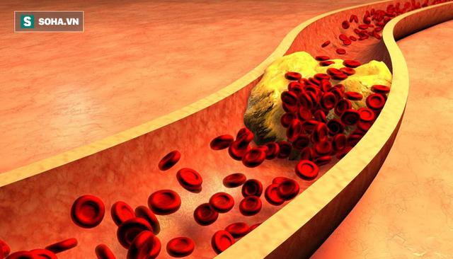 Bệnh mỡ máu cao là con đường chết chóc: Khuyến cáo 8 nhóm người nên chú ý đặc biệt - Ảnh 1.