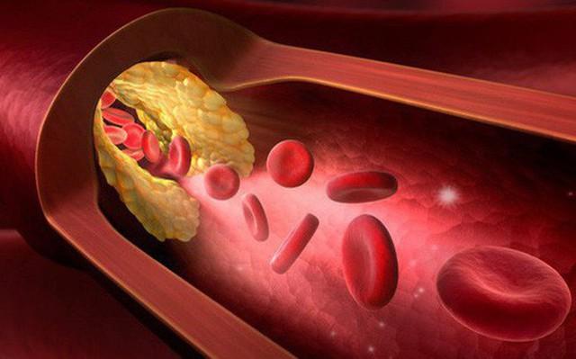 Bệnh mỡ máu cao là con đường chết chóc: Khuyến cáo 8 nhóm người nên chú ý đặc biệt - Ảnh 2.