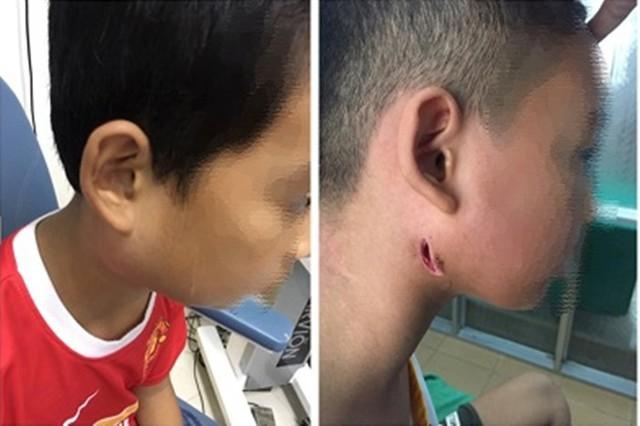 Một bệnh viện ở Nghệ An công bố 3 trẻ nhiễm bệnh Whitmore ăn thịt người: Cảnh báo dấu hiệu dễ nhầm lẫn với bệnh quai bị - Ảnh 1.
