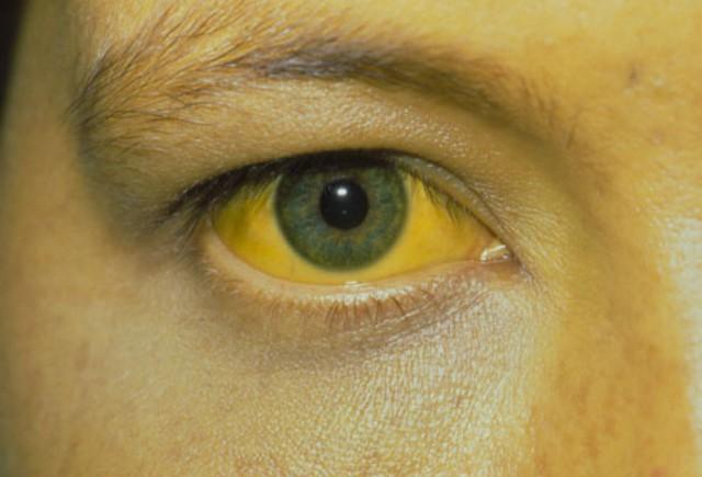 90% người mắc căn bệnh này không thể phát hiện ở giai đoạn sớm, đừng chủ quan với các dấu hiệu nguy hiểm này - Ảnh 1.