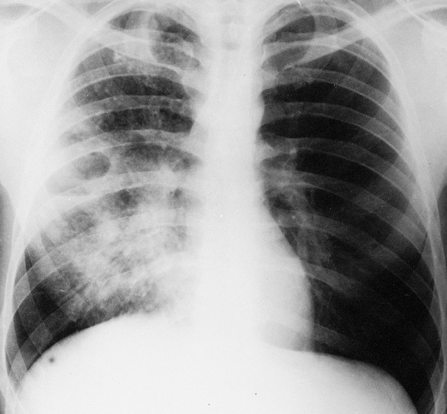 Mọi thông tin về căn bệnh nhiễm khuẩn ăn thịt người - Whitmore, đặc biệt là cách phòng ngừa cần lưu ý - Ảnh 4.