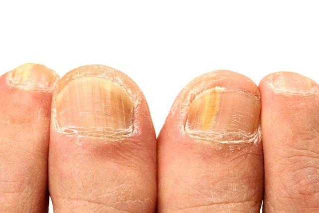 Móng tay vàng là dấu hiệu cảnh báo những vấn đề sức khỏe nghiêm trọng này - Ảnh 2.