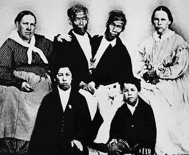 Cuộc sống kì lạ của cặp song sinh dính liền nhau nhưng vẫn mỗi người một vợ, sinh liền tù tì 21 người con - Ảnh 6.